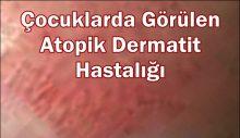 Çocuklarda Görülen Atopik Dermatit Hastalığı